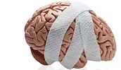 Can concussions kill