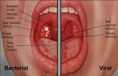 How to tell if you have strep