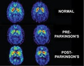 Brain Scan of Brain With Parkinson's Disease