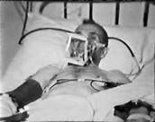 Tuberculosis Victim