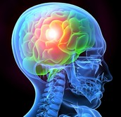 What is TBI?