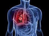 What is Lung Cancer