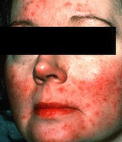 Subtype 2: Bumps and Pimples