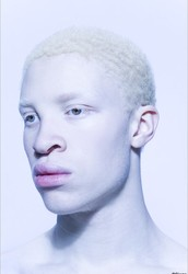 Example word:Albino