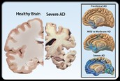 What is Alzheimers Syndrome?