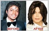 Micheal Jackson and BDD?