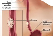 Esopagus cancer