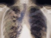 Lungs With Lung Cancer