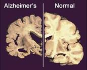 Diferencies entre un cervell amb Alzheimer i un normal.