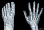 X-Ray of Foot and Hand