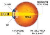 Presbyopia Focal Point