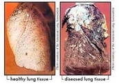 lung tisue before and affter