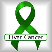 liver cancer: