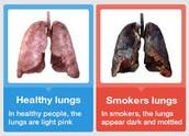 Livianos de fumador