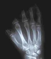 Bandsaw Injuries