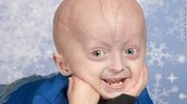 Child With progeria
