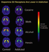 Signs Of Heroin Abuse and the psychological addiction/ Stop Your Addiction Hotline