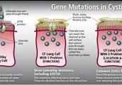 Gene Mutation in Cystic Fibrosis