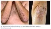 Symptom: Skin Rash