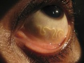 TapeWorms in eyes