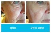 Redefine for wrinkles, fine lines & firmness