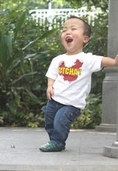 Achondroplasia (Dwarfism)