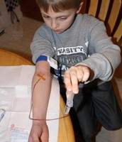 Factor VIII Transfusion