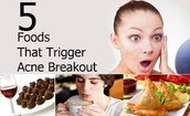 FOODS THAT TRIGGERS ACNE