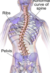 Signs and Symptoms of Scoliosis