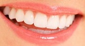 Your Teeth Should Stay Clean