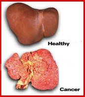 Healthy Liver .vs. Liver Cancer