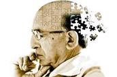 The memory of an Alzheimer