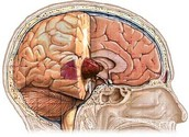 What is Astrocytoma?