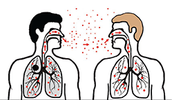 How Tuberculosis is Spread