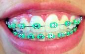 Ortodoncia metálica (convencional)