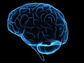 why i chose amnesia caused by trauma