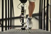 How long do bionics last