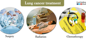 What are the Treatments To Lung Cancer?