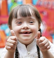 How do you prevent down syndrome?