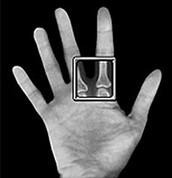 Finger X-Ray