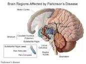 Brain Region Affected by Parkinson's Disease
