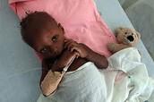 Niño con cólera