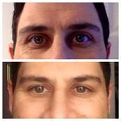 Men have had great results with the EVER regimen & it's easy to use
