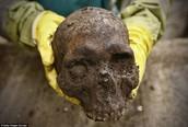 Skull Found in Garden