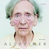 mas conocida como demencia