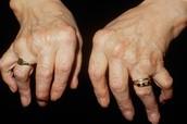Hands of Arthritis