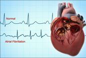 Atrial Fibrillation in comparison to Normal Heartbeat