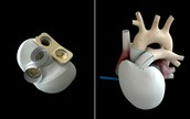 The first self-regulating artificial heart