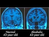 Alcohol effects to the Brain