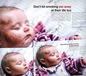 What smoking does to your little ones